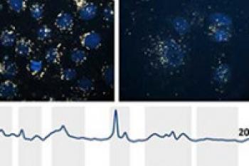 رویکرد جدید ارزیابی سمیت نانو در سلولهای انسانی با استفاده از پراکندگی رامان ارتقاء یافته